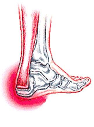 achilles tendonitis foot picture