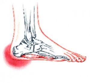 heel pain foot picture