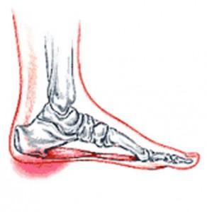heel spurs foot picture
