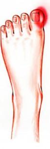 ingrown toenails foot picture