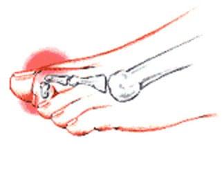 mallet toe deformity
