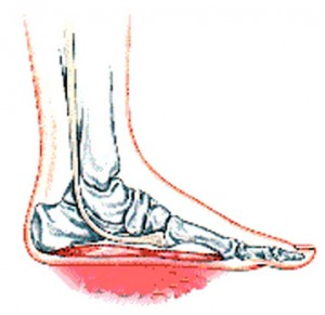 over pronation foot picture