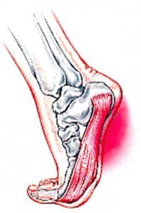 plantar fasciitis foot picture