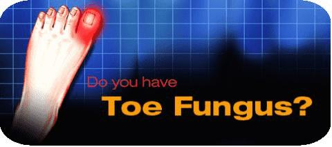 Toe Fungus min